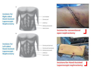 hand_assisted_laparoscopic_nephrectomy